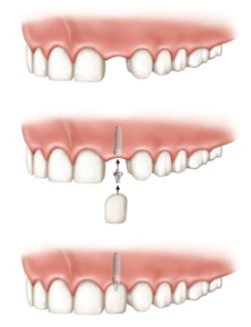 dental implants clinic